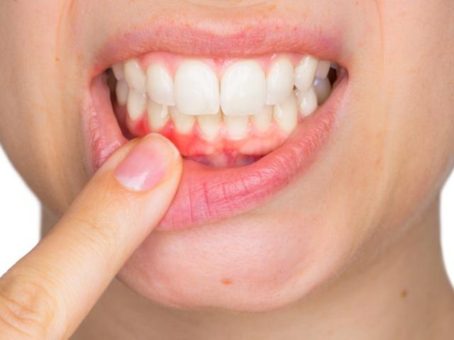 Как ухаживать за полостью рта при пародонтите?